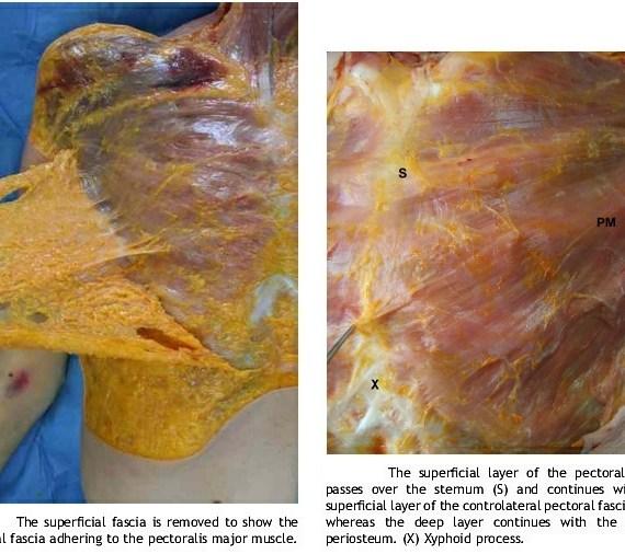 Autopsy of superficial fascia pectoral fascia