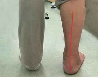 足の疾患と治療例:診療案內|しょうの整形外科クリニック