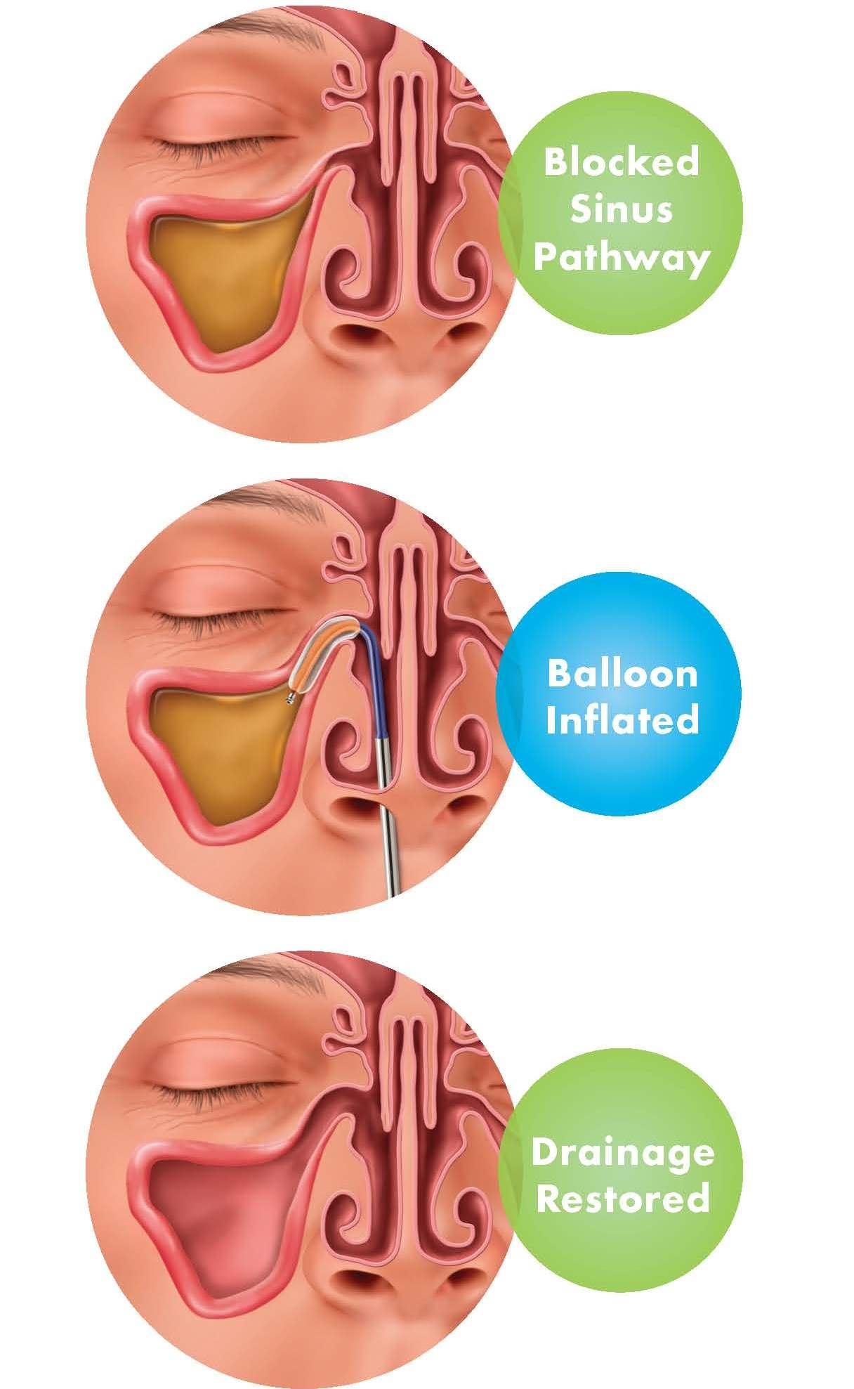 hight resolution of syracuse sinus center