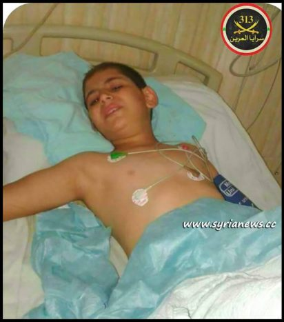 Ahmad Alkhayeir - Injured by Terrorists Shelling of Al Qardahah