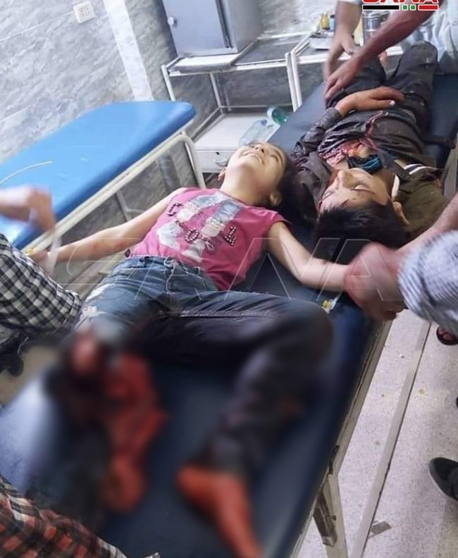 Syrian child injured by Erdogan forces bombing