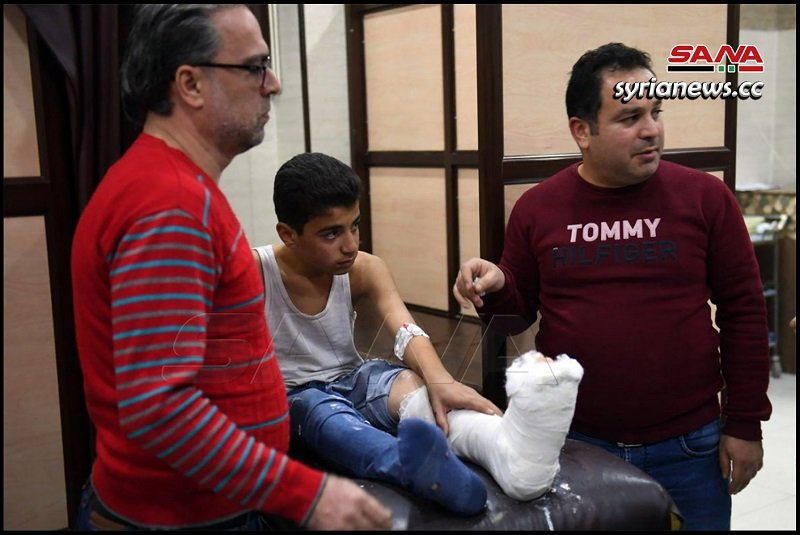 Child injured by Erdogan terrorists bombing of Aleppo