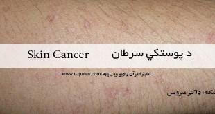 د پوستکي سرطان