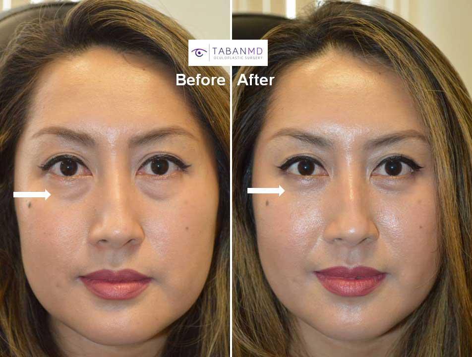 Lower Blepharoplasty Beverly Hills   Under Eye Bag Surgery ...
