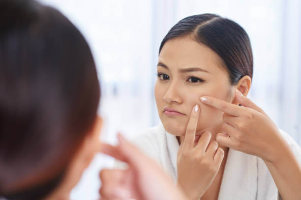 5 Effective Home Remedies for Acne Scar Treatment
