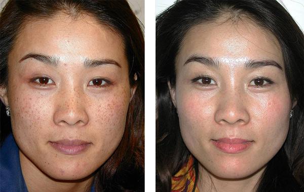 Laser Skin Treatment for Pigmentation