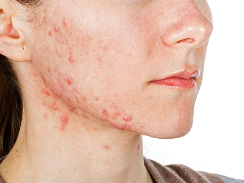 Systemic Acne Treatment