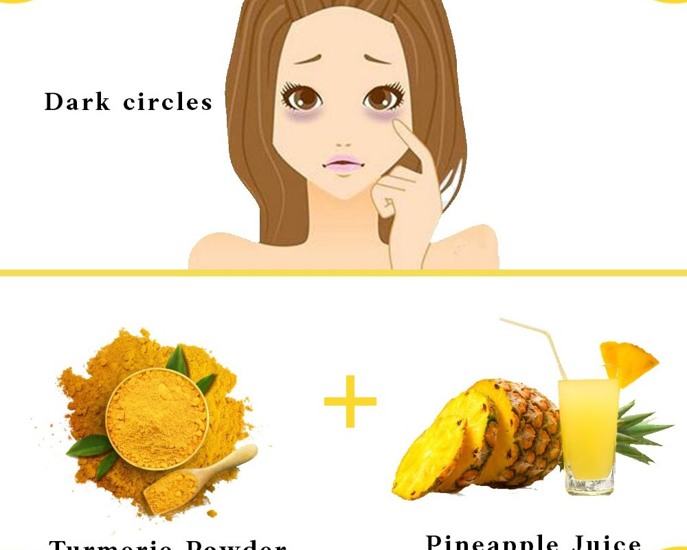 5 Amazing Tips from the Old Days to Get Rid of Acne Scars and Skin Imperfections