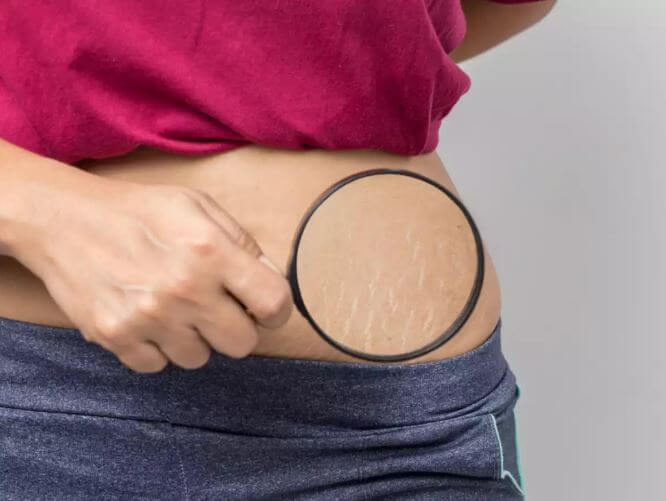 Natural Tips To Make Your Stretch Marks Fade (1)