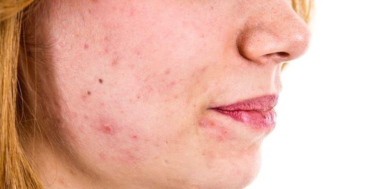 prévenir les poussées d'acné