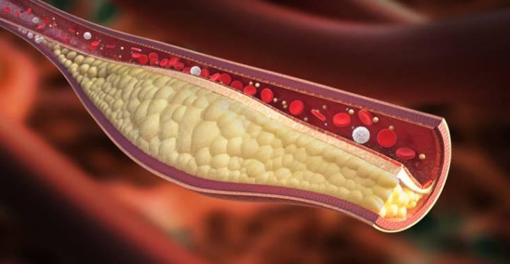Hypercholesterolemie
