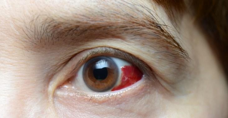 sang dans l'oeil