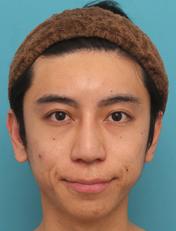 額形成(人工骨セメント) 名古屋の美容外科 愛知県名古屋 ...