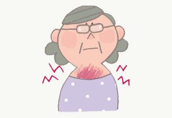 放射線療法と副作用 - リンパ腫のお話
