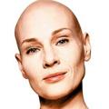 20050829-bald.jpg