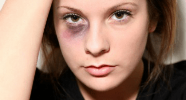 How can I get a DDV concession visa? I have faced Domestic Violence.
