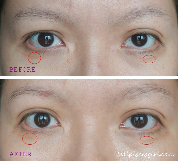Oslee Pro-Eye Medi Before-After