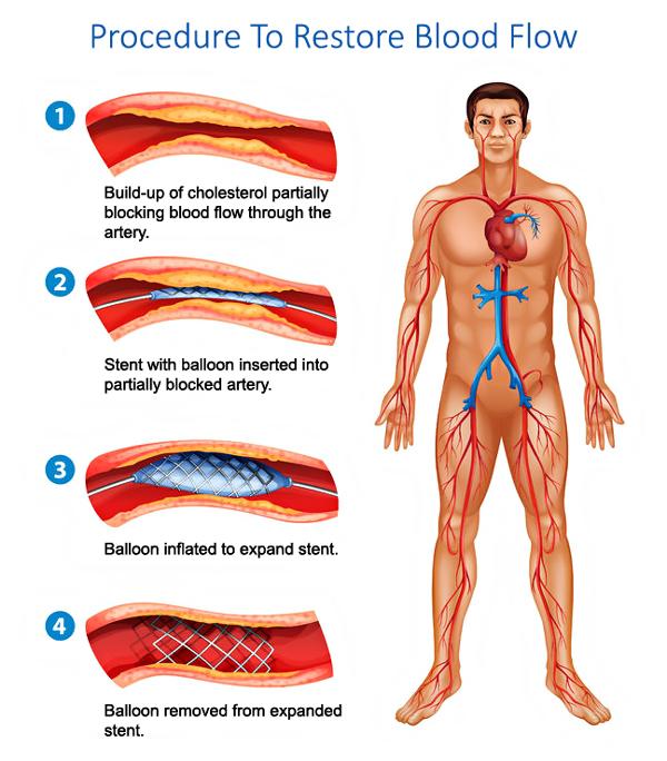 Procedure to restore blood flow