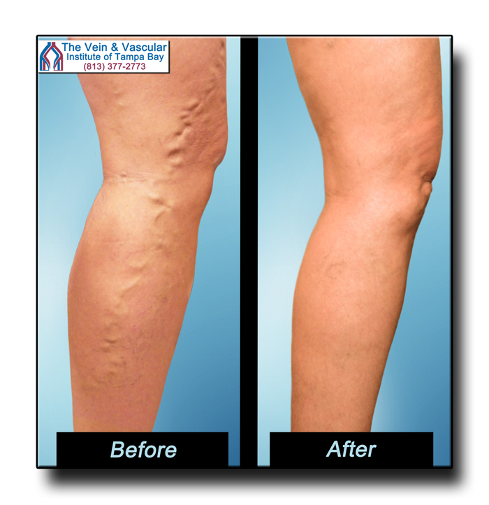 Tampa Varicose Veins Treatment Patient Photos - The Vein & Vascular Institute of Tampa Bay