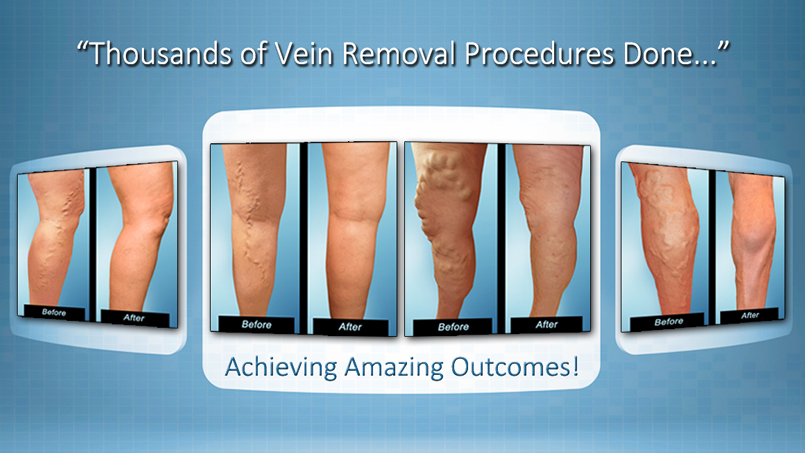 Varicose Veins Treatment Tampa FL at The Vein & Vascular Institute of Tampa Bay