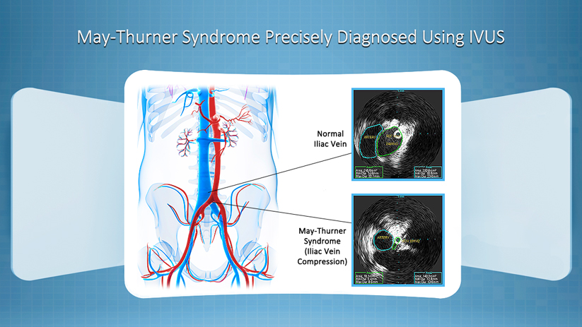 May-Thurner Syndrome Diagnosis Using IVUS Technology