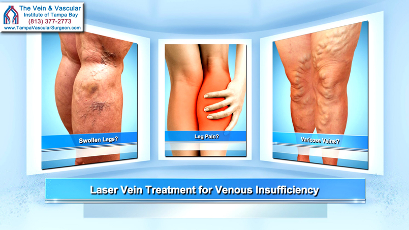 Laser Vein Treatment For Venous Reflux Tampa