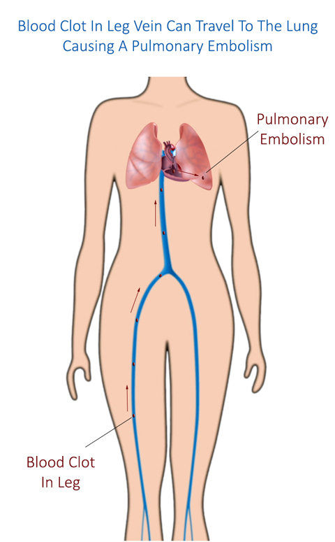 Venous Insufficiency Can Cause A Pulmonary Embolism