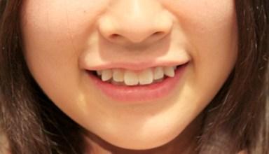 الأسنان الملتوية