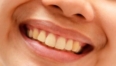 الأسنان الصفراء