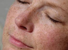 tanahoy.com freckles
