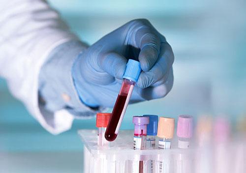HIV Testing Beaumont, TX