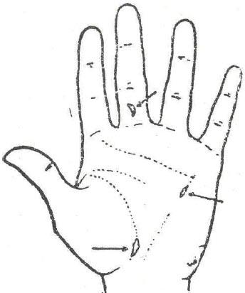 Índice de Sintomatología Quirológica por Orden Alfabético
