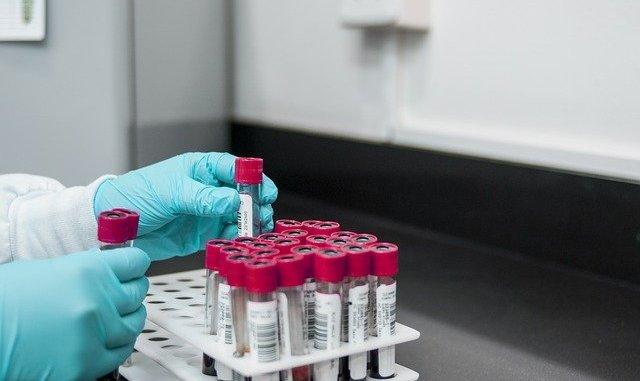AstraZeneca et thromboses l'agence européenne du médicament change d'avis