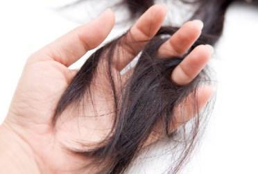 نتيجة بحث الصور عن علاج تساقط الشعر الدهني