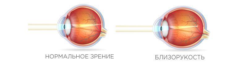 Сучасна офтальмологія -Tarus