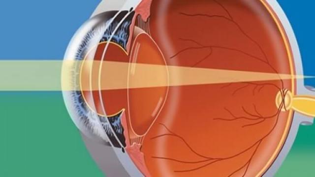 Рефракция глаза при близорукости
