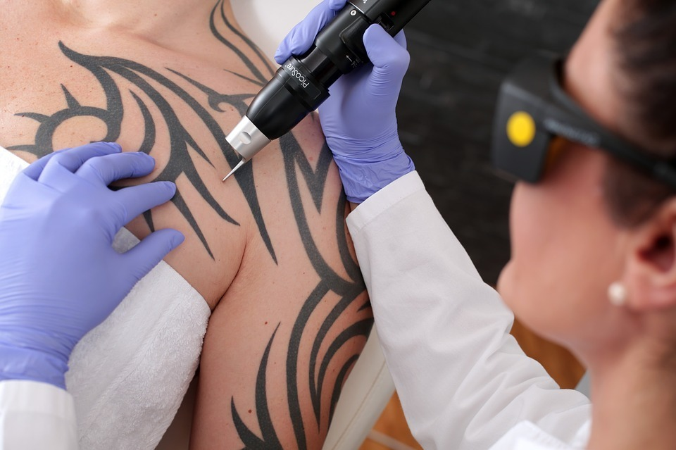 Laser Tattoo Removal Surgery