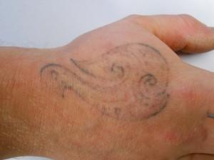 r20 tattoo removal