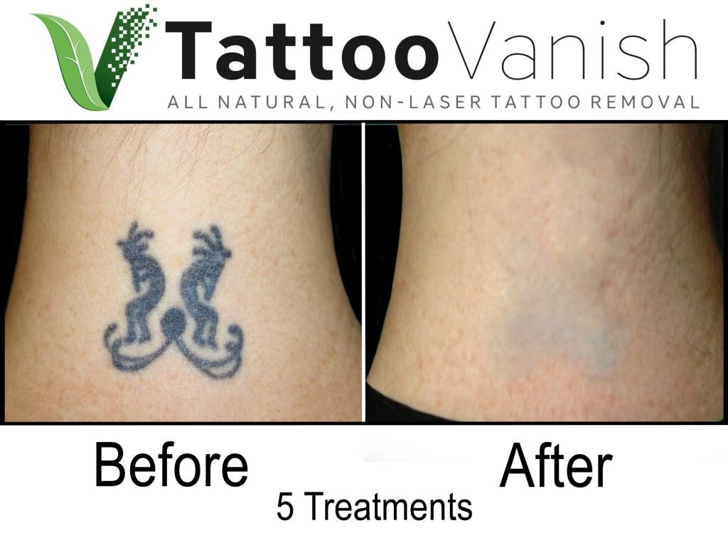Before And After Tattoo Removal Get The Best Results The