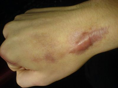 Cicatriz queloides y tatuajes