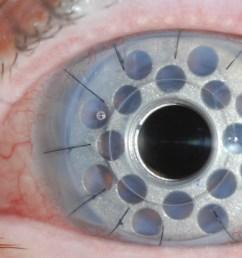 corneal transplantation tauber eye center eye diagram label printable diagram of the eye [ 4744 x 2812 Pixel ]
