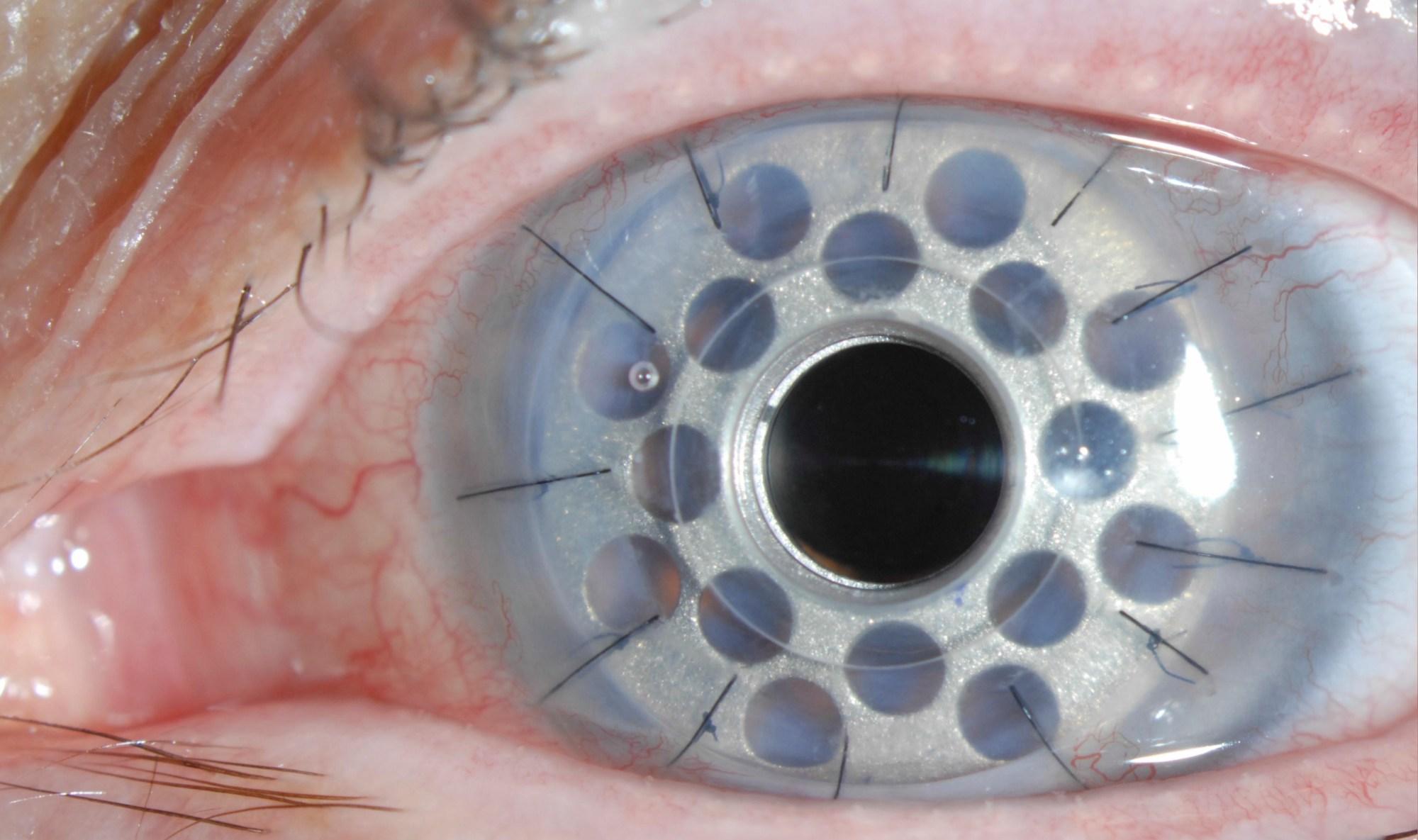 hight resolution of corneal transplantation tauber eye center eye diagram label printable diagram of the eye