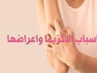 اسباب الاكزيما واعراضها وعلاجها