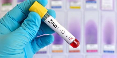 Zika | Blood Test | Zika Test
