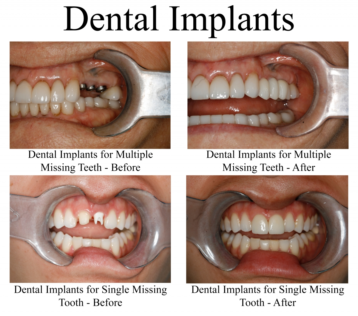 Replace Missing Teeth With Dental Implants