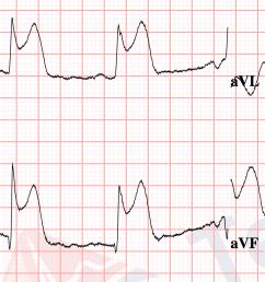 12 lead diagram [ 1208 x 860 Pixel ]
