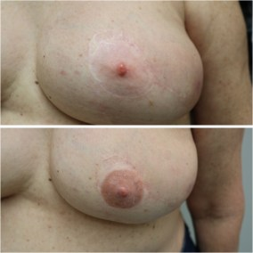Vicky Martin 3D Nipple Areola Tattooing Model Portfolio Picture 4