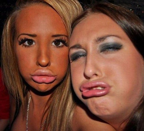 Duck Worst Lips Bad Lips Bad Makeup Fashion Fails Ugly Botox gone wrong worst eyebrows lashes