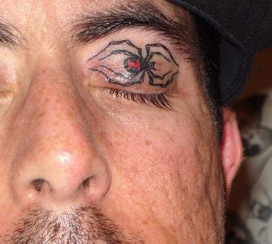 Spider Eye ~14 More of the Worst Bad Tattoos