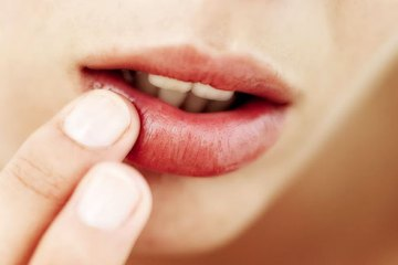 Home Remedies Herpes
